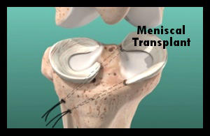 Dr. Varkey specializes in meniscus repair and tranplantation (image of knee joint with miniscal transplant)